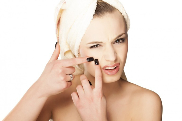 acné superados los 20 años no es una rareza